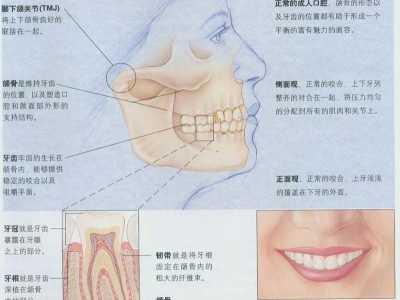 牙齿矫正的过程 图说口腔正畸的基本原理和一般过程